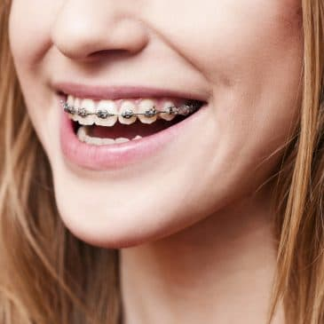 4 Things You Need to Know Before Getting Dental Braces – Cicero, IL