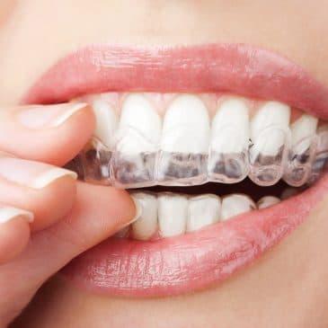 ClearCorrect in Cicero, IL: The Invisible Orthodontic Alternative